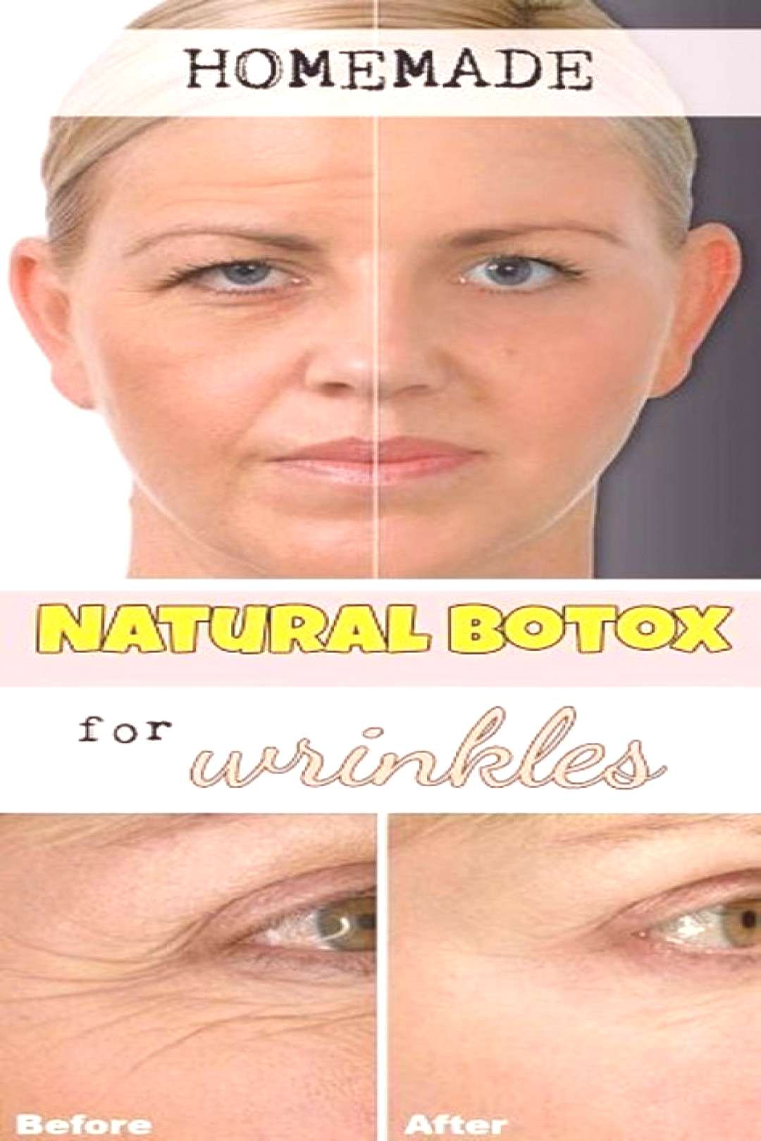 Homemade Cream with Botox Effect for Wrinkles